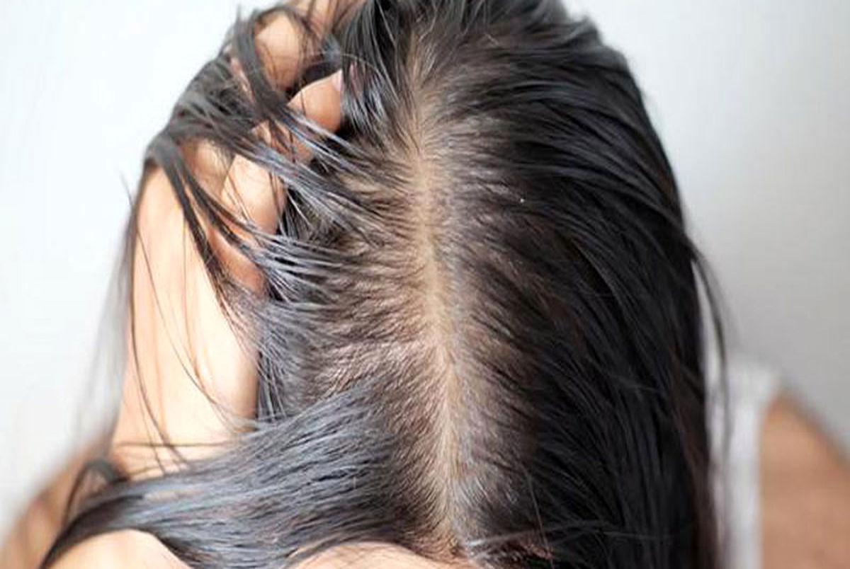 روش های از بین بردن موهای چرب چیست؟